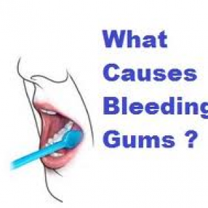 bleed-gums