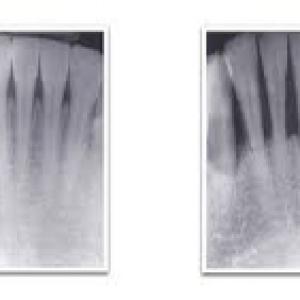 bone-loss