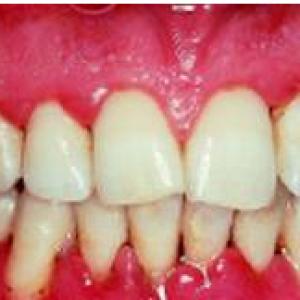 severe-gingvitis