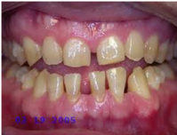 unilateral-teeth
